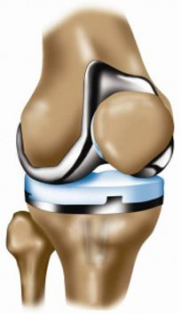 Knee replacement front view.jpg