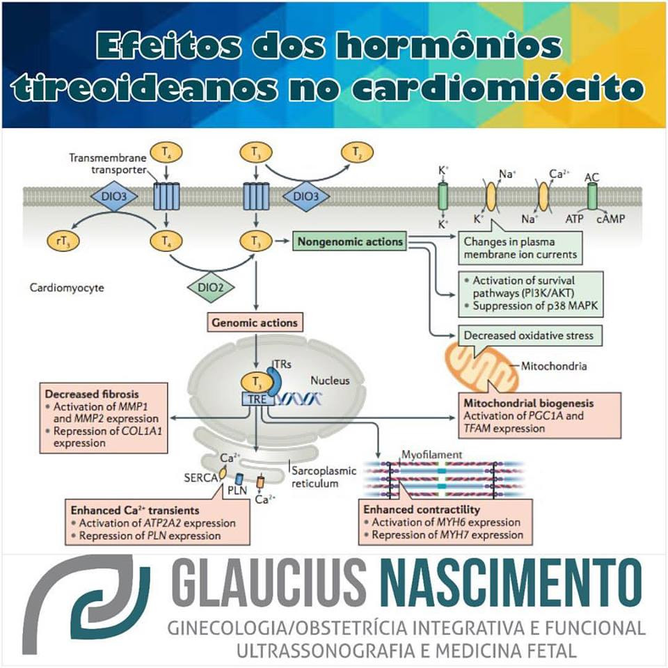 tirecardio
