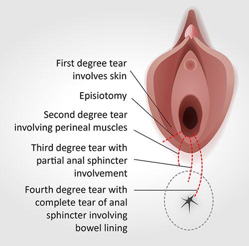Tipos de laceração perinatal e episiotomia no parto