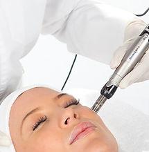 Microneedling - Mesotherapie