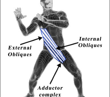 Stabilize with the Anterior Oblique Sling