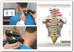 脊椎電腦掃瞄