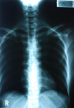 脊椎側彎治療