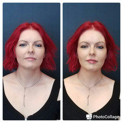 Juvederm XC to lips