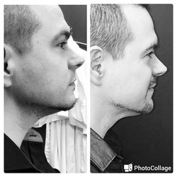One treatment of Kybella for submental fat
