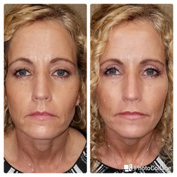 Restylane Lyft and Juvederm XC plus to cheeks, mid-face, and lips