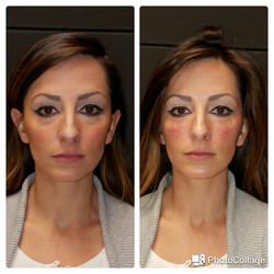 Restylane Lyft and Silk to cheek and underyes