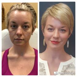 Voluma to cheeks, Juvederm XC Plus to nasolabial folds, Botox forehead