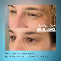 upper lower eyelids plasma md fibroblast
