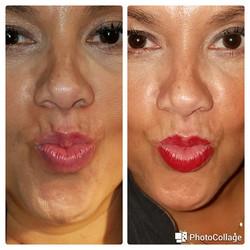 Restylane Silk Fine lip lines and Lip fullness