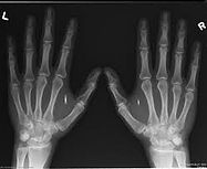 X-Ray-RFID-chip.jpeg