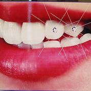 tooth-gem