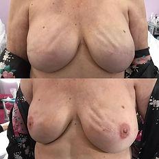 3D nipple restoration