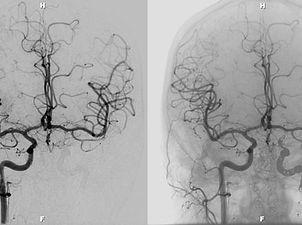 Neurointerventional-Image-TRA-NeuroIR-we
