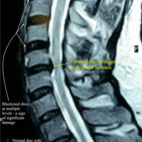 Herniated cervical disc