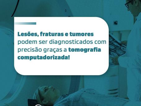 Dicas Imédica - Você sabe como funciona a tomografia computadorizada?