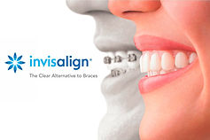Invisalign-iTero-Juarez-Clinica-Dental.j