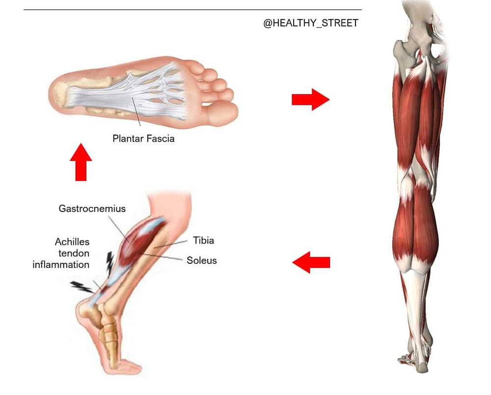 Anatomy of plantar fasciitis — it's a complete, interdependent system.