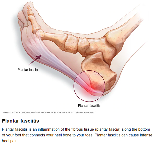 Plantar fasciitis is a total pain!