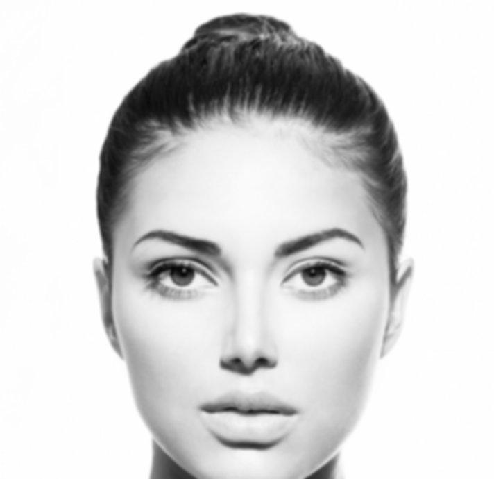 Botox areas face