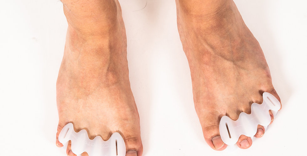 A top down view of a pair of feet with Correct Toes inserted to spread the toes for relief of bunions and hammertoes