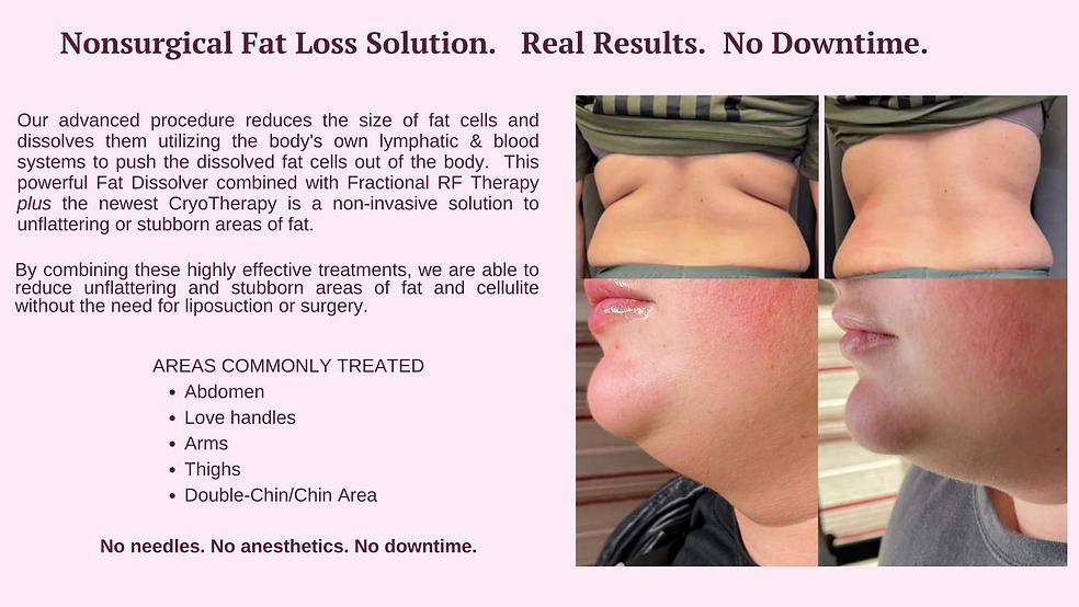 Fat Loss treatment