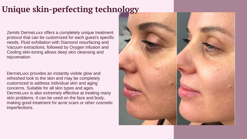 Dermeluxx treatment for your skin