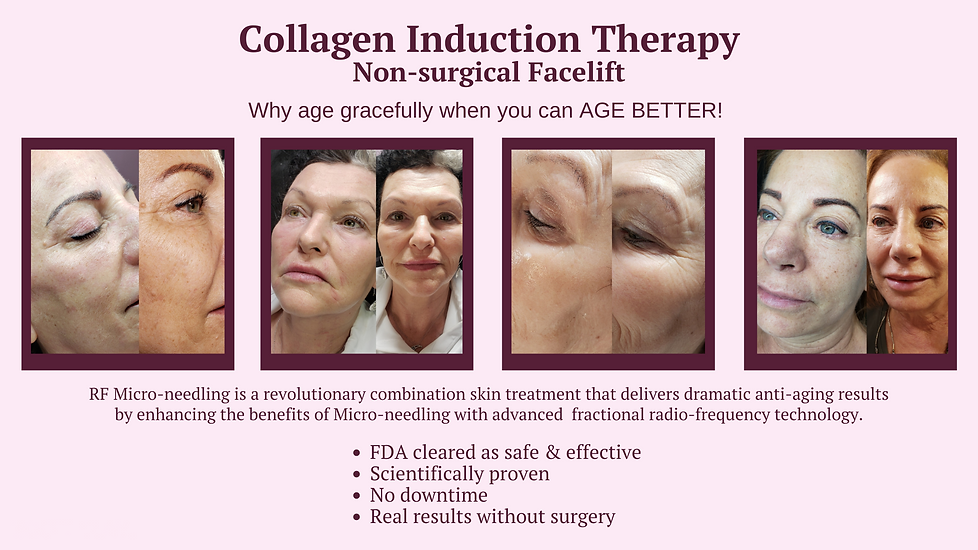 Collagen induction therapy Non surgical treatment