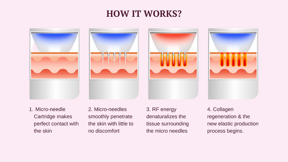 WEBSITE-COLLAGEN INDUCTION_APPROVED.png