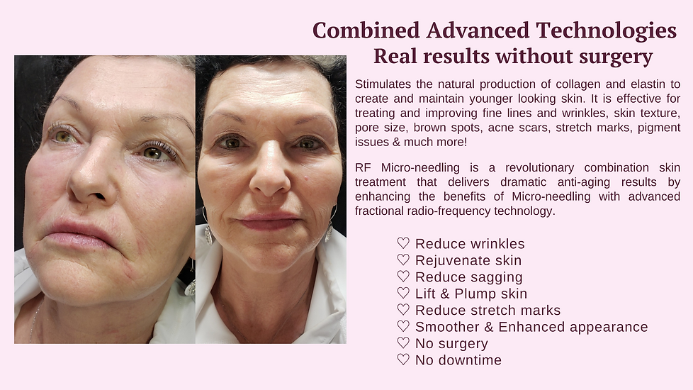 collagen induction real results near coral springs