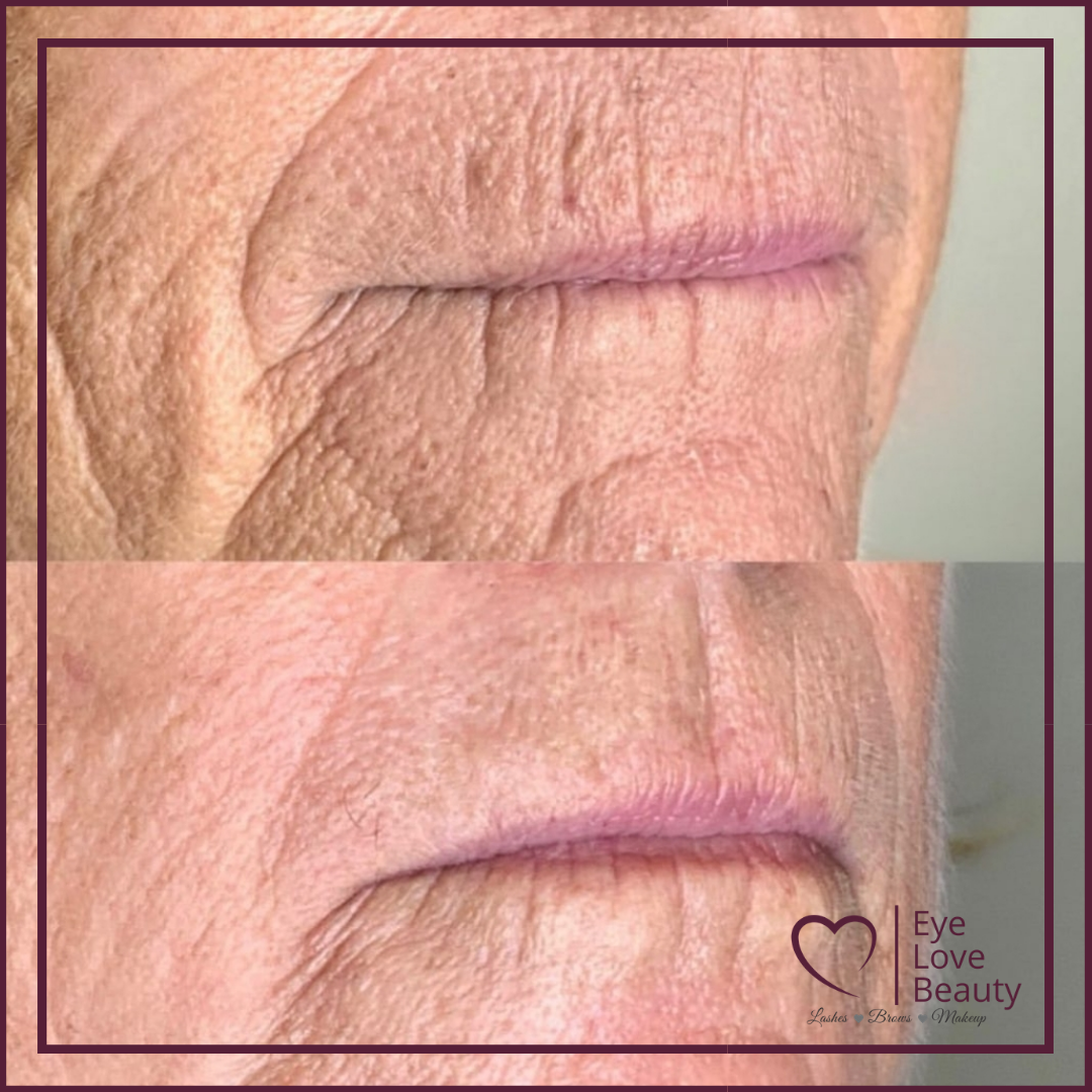 Lip Lines Plasma Pen Treatment