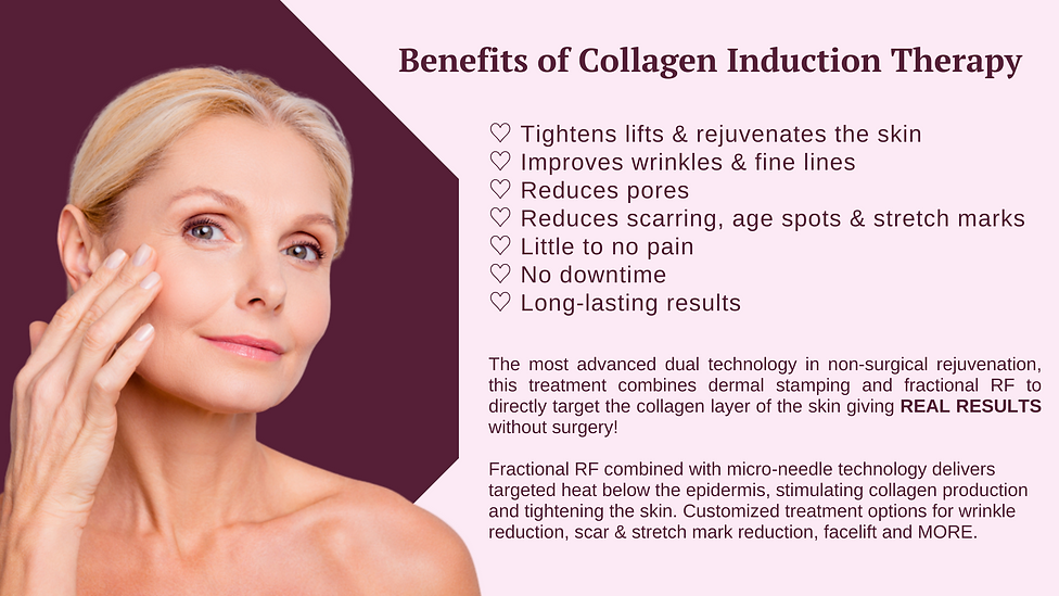 Benefits of collagen induction treatment