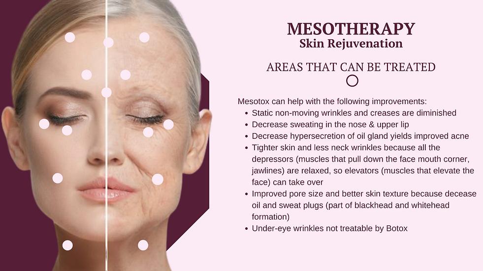 mesotherapy skin rejuvenation