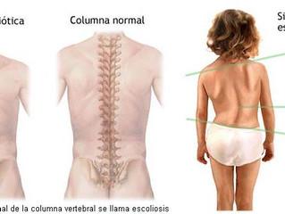 La prevención y mejora de la escoliosis con la quiropráctica