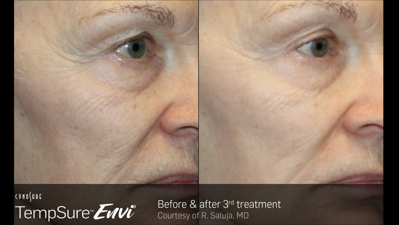 TempSure-Envi-Before-and-After-Image_8.j