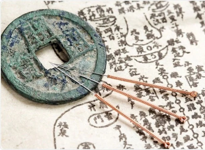 Accupuncture%20Chinese%20writing_edited.
