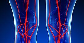 varizes, itapema, meia praia, cirurgia vascular, vascular, angiologia, angiologista, cirurgião vascular, trombose, flebite, meias, dr. carlos cunha