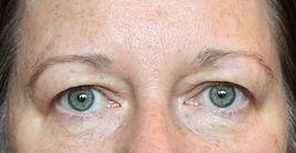 Natural Face Lift Massage, Facial Rejuvenation, Skin Care, Facial Treatments, Skin care, Aesthetics