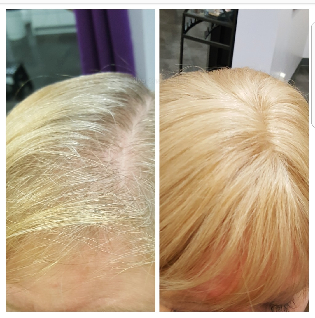 hair loss solution blonde