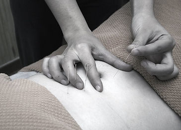 acupuncture-4175625_1280_edited_edited.j