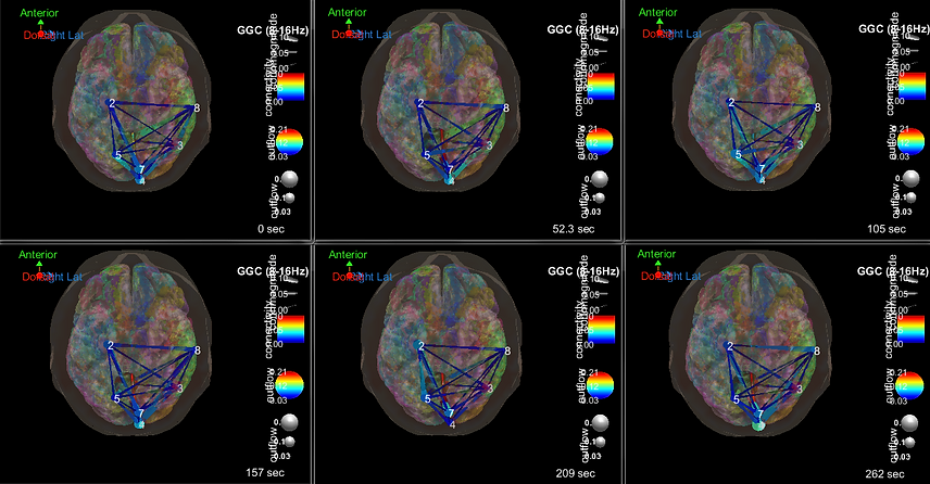 brain maps from granger causality.png