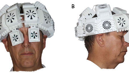 Article Review: Effect of transcranial near infrared light 1068 nm upon age-related memory status