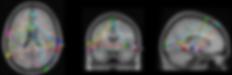 sLoreta Analysis .png