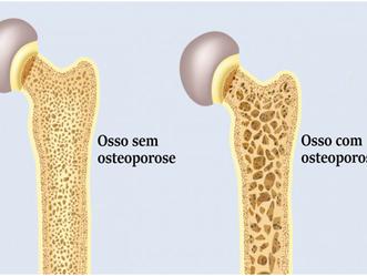 FISIOnews | Osteoporose: na busca do conhecimento para boa saúde óssea