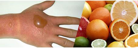 SAÚDEnews   Frutas cítricas e sol: Hidrate seu corpo e proteja sua pele contra queimaduras, reações