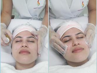 ESTÉTICAnews: Cuidados básicos com a pele - Tonificação