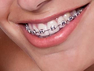 FONOnews   A parceria da Fonoaudiologia com a Ortodontia