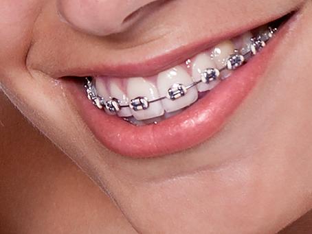FONOnews | A parceria da Fonoaudiologia com a Ortodontia