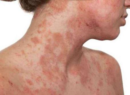 Dermatite atópica é crônica e incurável, mas pode ser controlada