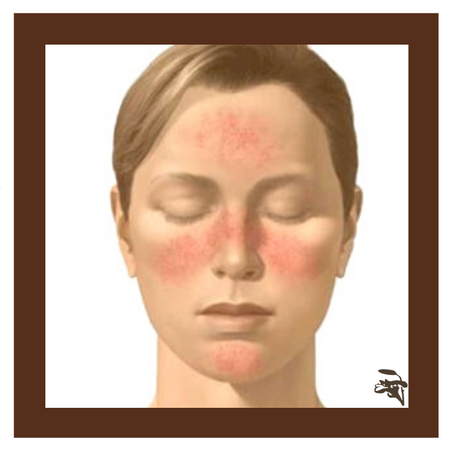 Rosácea | Manipulados Boaformula